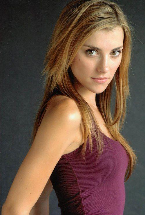 Emma Lahana botox