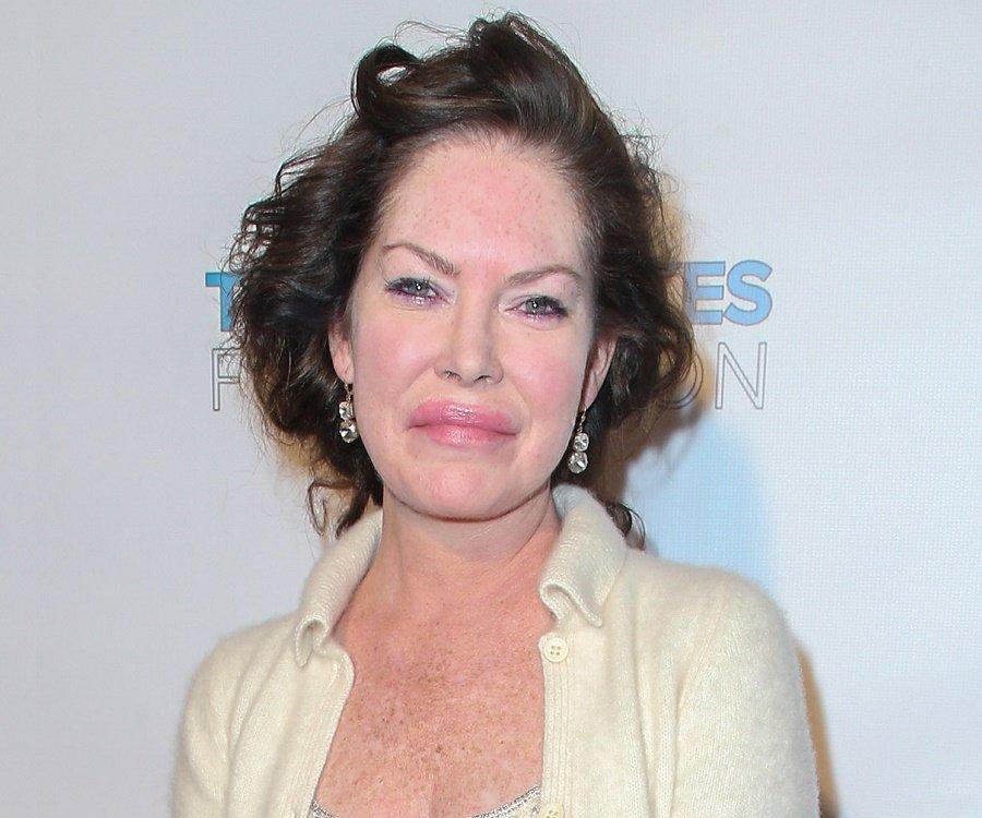 Lara Flynn Boyle lips botox nose job