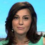 Rachel Campos-Duffy nose job boob job botox
